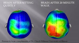 brain-300x167